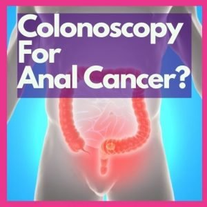 can a colonoscopy detect anus cancer