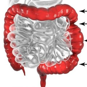 can ibs cause anemia